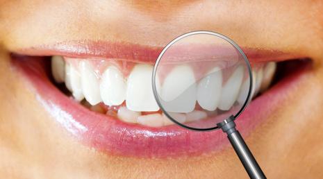 Weiße Zähne davor eine Lupe